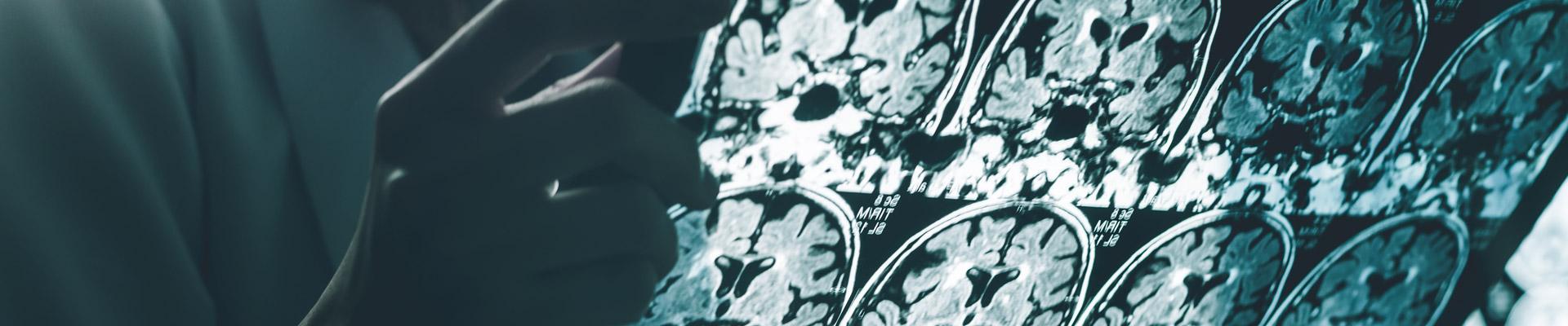 DrBenConditions-Headaches